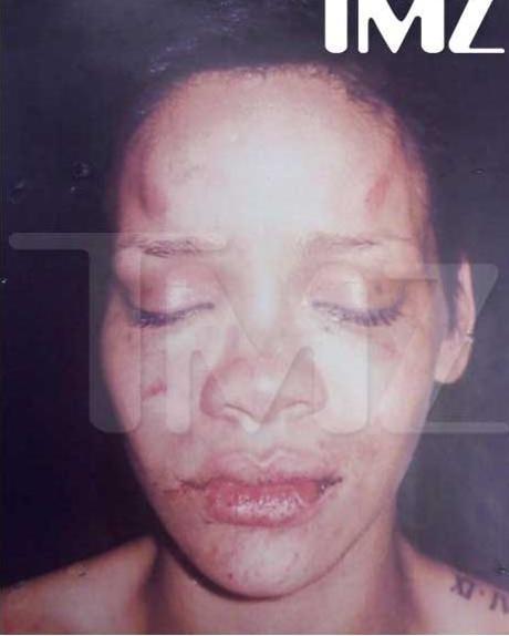 Ünlü şarkıcı Rihanna'nın, polis kayıtlarından sızdırılan fotoğrafı ile erkek arkadaşı şarkıcı Chirs Brown tarafından feci şekilde dövüldü. Los Angelas Polis departmanından sızdırılan bu fotoğraf sonrası Brown kariyerinin en kötü günlerini yaşamaya başladı.