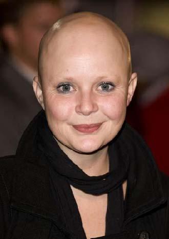 Güzel sunucu alopecia areata ya da saçkıran adı verilen hastalık yüzünden bir gecede saçlarını kaybetti. 2005 yılında meydana gelen bu olay Porter'ın yaşamını da değiştirdi.