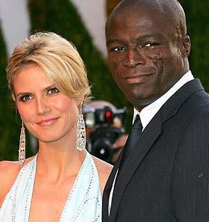 ONUN DA BÜYÜK BİR DERDİ VAR Ünlü tops model Heidi Klum'un eşi Seal'ın hastalığının adı lupus.