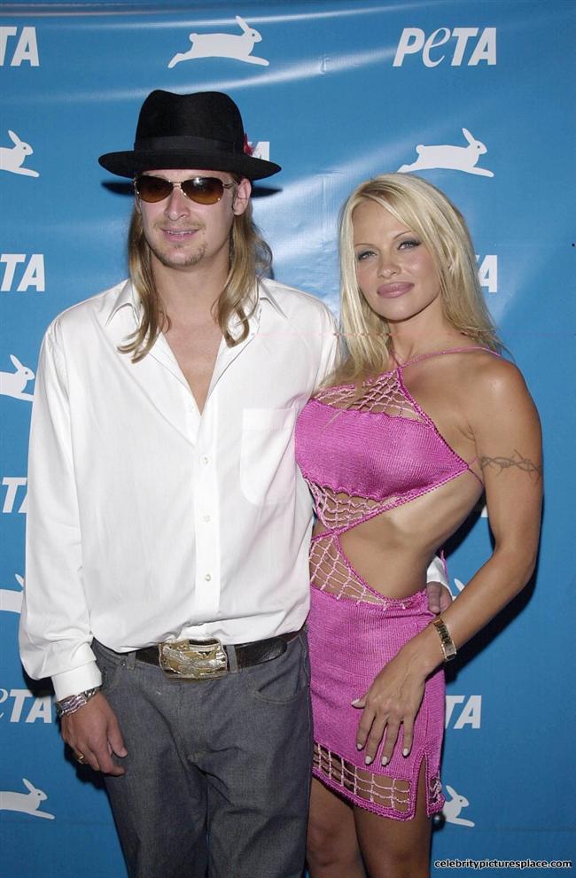 Türkiyeye geldiğinde Halikarnas Diskoya eğlenmeye giden Pamela Anderson`ın sevgilisi Kid Rock, bir muhabire saldırmıştı.
