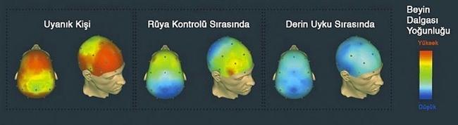 5. Farklı anlarda, 40 Hz beyin dalgalarının MRI görüntüleri: