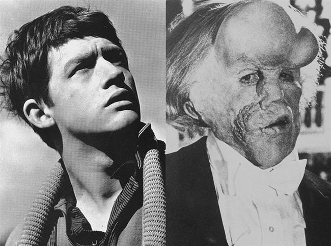 John Hurt - Fil Adam / The Elephant Man (1980)  'multiple neurofibromatosis' isimli nörolojik bir hastalığa yakalanmış John Merrick karakterini canlandıran John Hurt'tan bir iz bulmak mümkün değil.