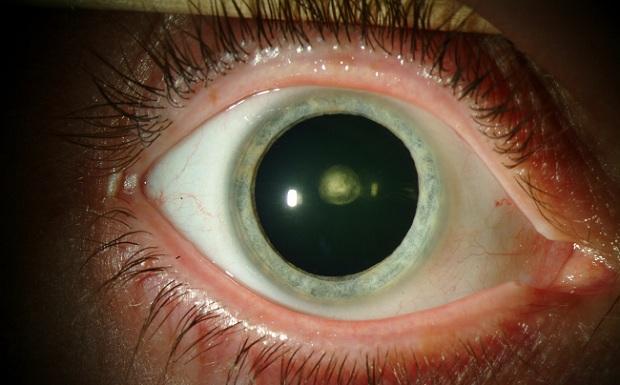 11. Gözleriniz kör noktalara adapte olabilir  Glokom gibi belli başlı göz sorunları görüşünüzde kör noktaların ortaya çıkmasına sebep olabilir. Tıpkı ters çevrilmiş görüntüye alışmanız gibi beyniniz boşlukları doldurarak kör noktalara adapte olmanızı sağlar.