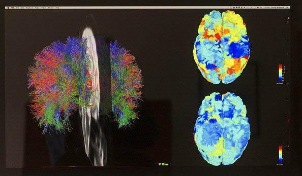 İnsan Beyni Hakkında Bilmediğiniz 43 Gerçek - 10