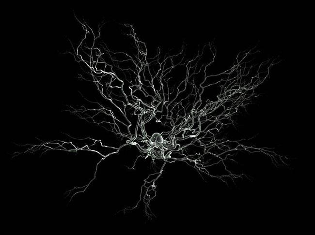 4. Oldukça küçük boyutlara sahip olmalarına rağmen, günümüz bilimi tek bir nöron üzerinde ölçüm yapabiliyor. Beyne mikroelektrotların yerleştirildiği bu işlem 'tek-ünite-kaydı' ismi ile biliniyor.