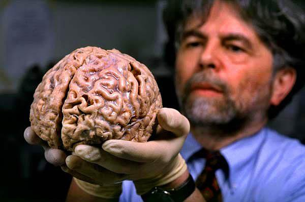 9. Yaşayan insan beyninin rengi daha pembemsi ve bilim adamlarına göre canlı beyin tofu peyniri kıvamında.