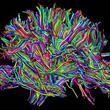 İnsan Beyni Hakkında Bilmediğiniz 43 Gerçek - 41
