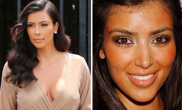 3. Kim Kardashian ve Bebek Saçları  Güzelliğine gölge düşürdüğü için Kim Kardashian'ın alnında çıkan bebek saçlarına ağda yaptığı söyleniyor. Eğer büyük bir özveri ile uzatmadıysa, yukardaki değişimi de bunu kanıtlar nitelikte.