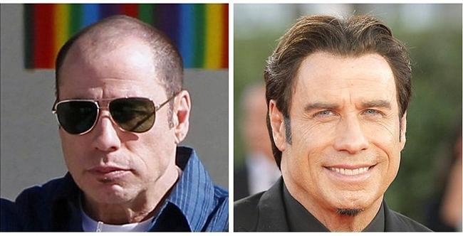 John Travolta, 2011 vs. 2014.