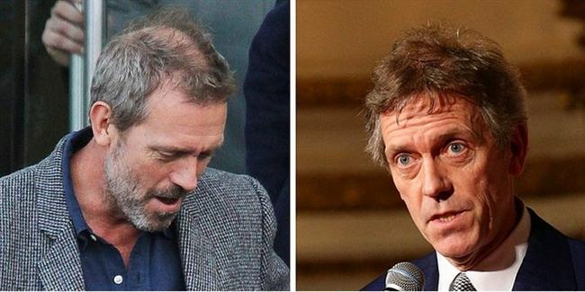 Hugh Laurie, 2011 vs. 2014.