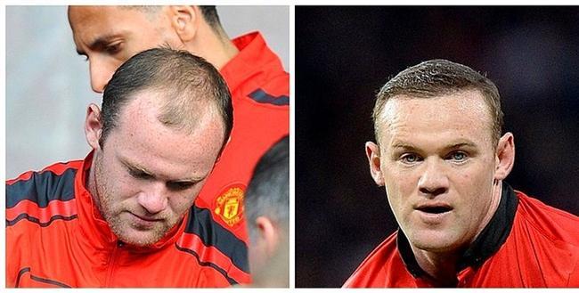 Wayne Rooney, 2011 vs. 2014.