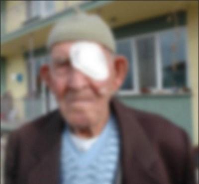 """Samsun'da 40 yıl sonra ameliyatla gözleri açılan adam, """"Hayalimdeki dünya ve insanlar daha güzeldi. Dünyayı sevmedim."""" diyeli 46 yıl oldu."""