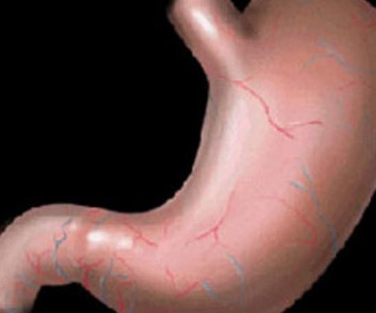 İnsan midesi 2 haftada bir iç zarını yenilemek zorundadır aksi halde kendi kendini sindirir.