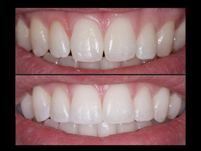 Adeziv sistem (bonding) nedir?  Dişin rengini veya şeklini değiştirmek, büyütmek ya da bir kusurunu tedavi etmek amacıyla dişe yapılan ilavelerdir. Bu amaçla kullanılan malzemeler (mikrofil ajanlar), doğal dişin dış yüzeyine tutturularak şekil ve renk bozuklukları kolayca giderilebilir.    Bonding, günümüzde en çok ve en son uygulanan koruyucu dişhekimliği işlemlerinden biridir. Çoğu durumda, en az miktarda diş kaybı ile bu işlem gerçekleştirilir.