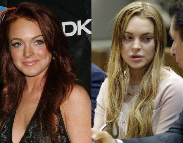 Lindsay Lohan da defalarca tedavi gördü ama kötü alıkanlıklarına geri döndü. Lohan bir süredir bu tür haberlerle gündeme gelmiyor. Ama yaşadığı hızlı hayat ve kötü alışkanlıkları onun daha 30 yaşına bile gelmeden çökmesine neden oldu.