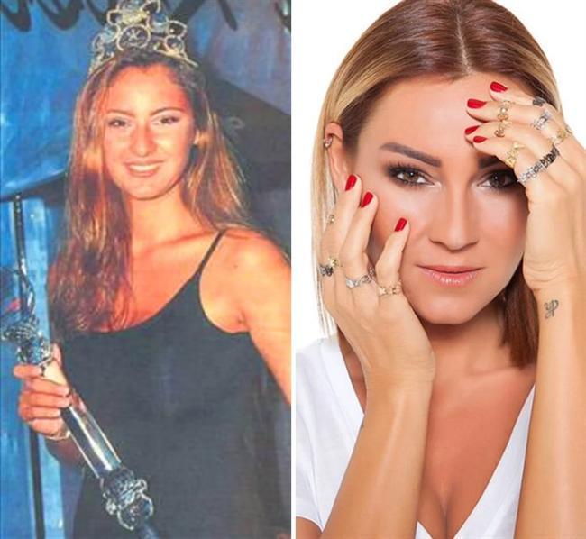 Pınar Altuğ 1994 yılı güzeli olduktan kısa süre sonra modelliğe veda etti. Önce leziz yemekler hazırladığı programı ile, ardındansa severek izlenilen ''Çocuklar Duymasın'' dizisi ile evlerimize misafir oldu.