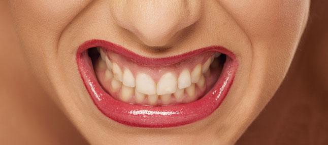 2. Dişlerinizi sıkmamaya gayret edin. Bu hareket boyun kaslarınızı gerebilir.