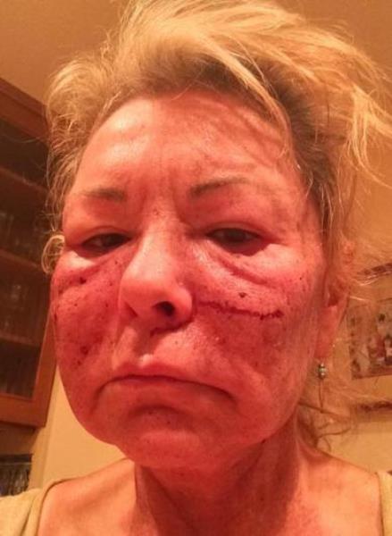 Bu yöntemi en son uygulayanlardan biri de 62 yaşındaki Roseanne Barr. Oyuncu önceki gün Twitter sayfasında işlemden sonra çekilen bu fotoğrafını paylaştı.
