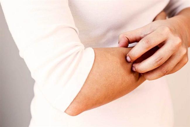 • Ürtiker   Halk arasında 'kurdeşen' olarak da bilinen ciltte kızarıklık kabarma kaşıntı ile seyreden bir hastalıktır. Pek çok neden ürtikere yol açmakla birlikte polen maruziyetinin arttığı ilkbahar aylarında hastalığın görülme sıklığı yaygınlaşmaktadır. Korunmada diğer alerjik hastalıklarda olduğu gibi alerjenlerden kaçınmak gerekmektedir.