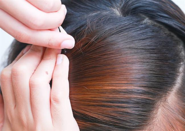 Her saçınıza tel tokaları doğru bir şekilde geçirdikten sonra, işleminizi tamamlamış olursunuz.