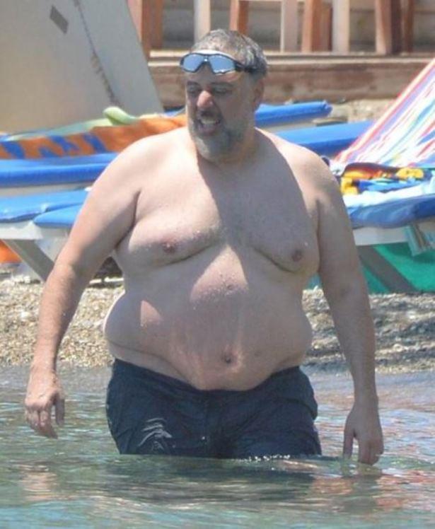126 kilo iken geçirdiği ameliyat sonrası yoğun diyet programı da yapan Hamdi Alkan, 6 aylık süreçte 30 kilo vererek 96 kiloya düştü.