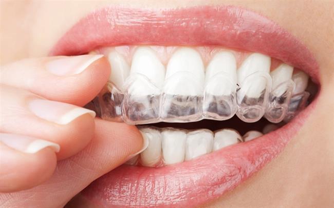 """Tedavi yöntemleri   Diş gıcırdatmanın yol açtığı rahatsızlıkları ve kişinin diş gıcırdatmasına devam etmemesi adına """"gece koruyucuları"""" olarak adlandırılan silikon içerikli diş plakları kullanılabilir."""