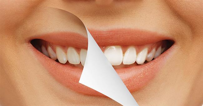 Sarı Dişler  Kim rengi sarı ya da griye dönmüş dişlere sahip birinin gülümsemesini ister? Yorucu günlerinizde dinç kalmak için çok çay ve kahve tüketiyorsanız diş bakımına ekstra özen göstermeniz gerekiyor. Bunun için beyazlatıcılı etkili diş macunlarını tercih etmenizde fayda var.