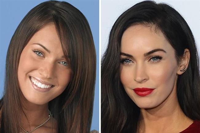 Megan Fox'un estetik operasyonlara harcadığı para 5 bin dolar. Aslında doğal haliyle de güzel bir kadın olan Fox bununla yetinmemiş olacak ki bıçak altına yatmayı göze aldı.