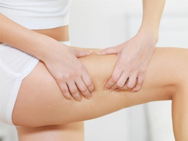 Kadınların yüzde 90- 95'inde görülen selülit, en çok kalça, basenler ve vücutta ortaya çıkıyor. Genellikle kilolu kadınları etkisi altına alsa da, zayıf olanlar da sorun oluşturabiliyor. Hemen her kadının derdi olan selülitten yağ depolarını boşaltan ve toksinlerin vücuttan atılmaların sağlayan bir beslenme ve egzersiz programı ile büyük bir oranda kurtulmanız mümkün aslında.    İşte selülitlerden kurtulmak için tüketmeniz gereken besinler!