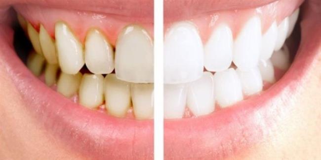 """• Diş Taşı Dişi Korur!   Yanlış Diş hekimi """"Diş taşları sünger gibi delikli bir yapıya sahiptir; bu küçük boşluklarda mikroorganizmalar birikerek diş etinin iltihaplanmasına ve çene kemiğinin erimesine neden olur. Diş eti sağlığı açısından diş taşları mutlaka temizlenmelidir. Diş taşı dişi korur yanlış bir kanıdır"""" diyor.    Ağız Kokusundan Kurtulmanın 9 Yolu İçin Tıklayın!"""