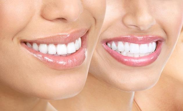 Gliserin  Yine ağzınızı fırçalayıp bol suyla çalkalayın; ardından fırçanıza 2 damla gliserin damlatın ve dişlerinize sürün. Bakteri öldürme özelliği olan gliserin, diş çürüklerine karşıda etkili olacaktır.