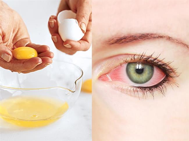 Göz Hastalıkları   Gözlerinden sıkıntı yaşayan kişiler sıklıkla yumurta tüketmelidirler, aynı zamanda göz hastalıkları için de önleyici bir rol oynamaktadır.