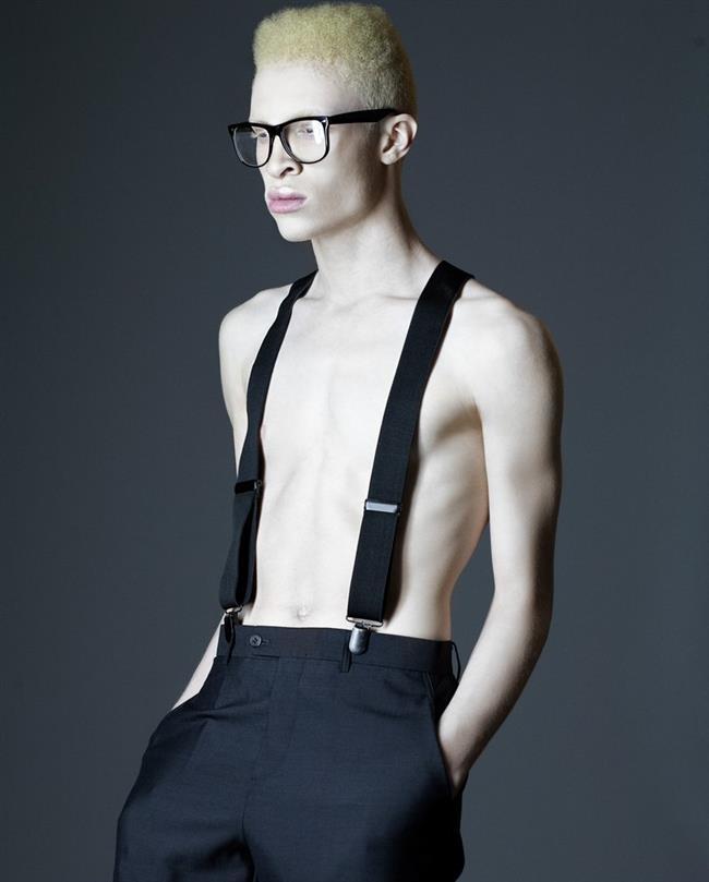 Shaun Ross  Shaun Ross dünyanın ilk albino modelidir.