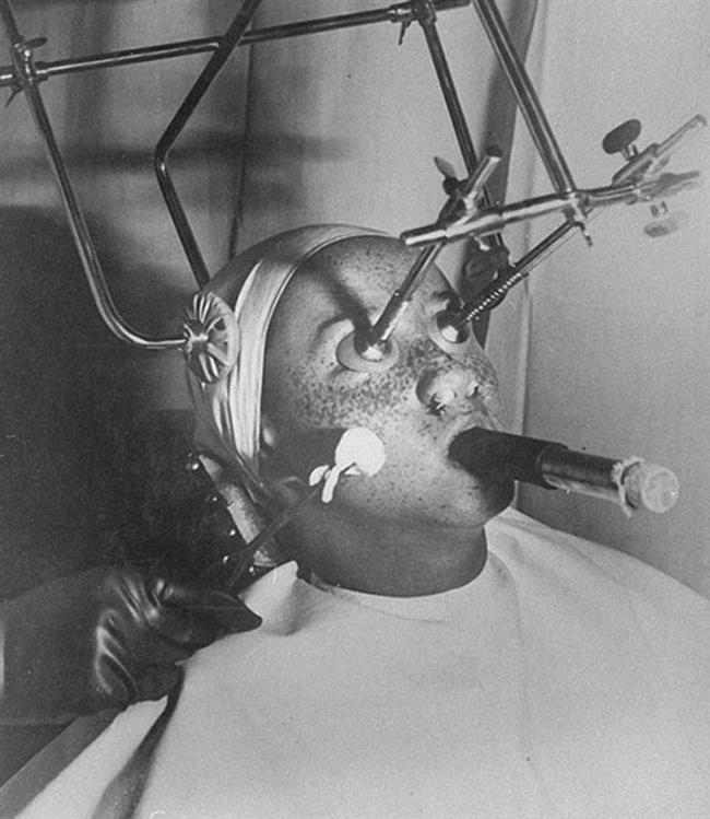 2-Çil Yokedici  30'larda bu yöntem oldukça yaygındı. Çilleri dondurmak ve yok etmek için karbondioksit kullanılıyordu. Kullanılan kimyasalların zararlı etkilerinden dolayı ise hastaların gözleri ve burun delikleri kapatılıyordu.