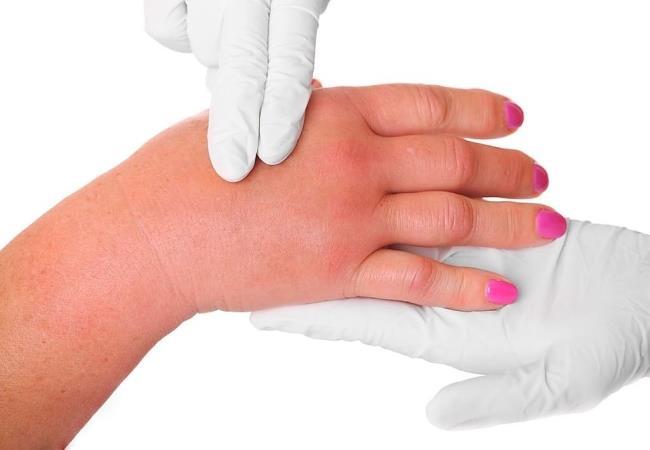 """""""Cerrahi tedavide tam iyileşme mümkün""""   Karpal Tünel Sendromu'nun belirtileri genellikle yavaş yavaş başlıyor, özellikle başparmak, işaret parmağı, orta parmak ve avuçta yanma, karıncalanma, uyuşma, kaşıntı ya da his kaybı ile kendini gösteriyor.  Hastalık en çok başparmağı etkiliyor ki, başparmağımız sadece elimizi değil, hayatımızın yüzde 50'sini yönetiyor. Prof. Dr. Ufuk Nalbantoğlu, Karpal Tünel Sendromu'nda medikal tedaviden sonuç alınamazsa cerrahi yönteme başvurulduğunu belirtirken """"Tedaviye ne kadar erken başlanırsa o kadar başarılı sonuçlar alınıyor. Cerrahi tedaviye gerek kalmayabildiği gibi, cerrahi tedavide de tam iyileşme sağlanabiliyor"""" diyor."""