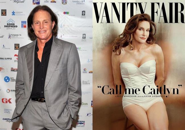 Caitlyn Jenner  Baba olduğu dönemlerdeki adıyla Bruce Jenner, cinsiyet değiştirdikten sonra kaç estetik yaptırdı bilinmez.