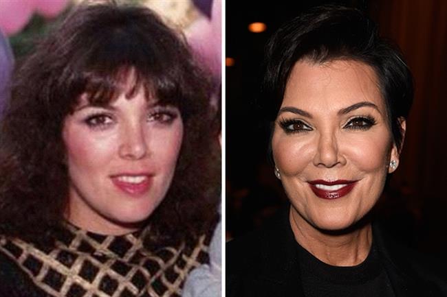 Kris Jenner  Yaş ilerledikçe estetik operasyonlarını bu kadar seven bir ailede anne Kris'in doğal güzelliğini koruması beklenemezdi. Kaçınılmaz dudak dolgusunun yanında yüz gerdirme operasyonu geçirmiş.