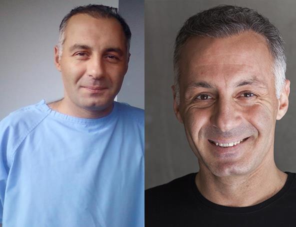 Ahmet Saraçoğlu da bir mucize gerçekleştirmediyse saç ektirenler kervanına katılmış. Bir diğer seçenekse saçlarını gürleştirmek için çapa göstermesi olabilir.