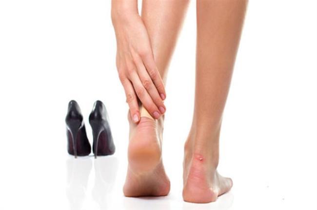Ayakkabı Vurmasını Önleyin   Ayakkabının vurduğu bölgelere dudak balmı sürerseniz çektiğiniz acıyı hafifletebilirsiniz.