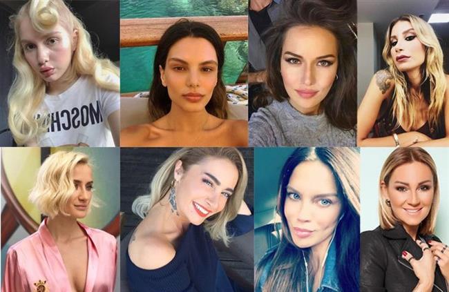 İşte podyumlardan sahnelere ünlü isimlerin estetikten önceki ve sonraki şaşırtan değişimleri!  Kaynak Fotoğraflar: Instagram, Google yeniden