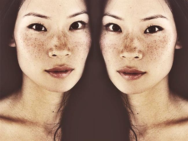 Güneş Lekelerinizi Giderecek 7 Pratik Maske - 10