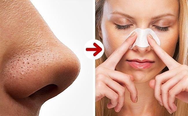 Siyah Noktalardan Kurulmak İçin:   Siyah noktalardan kurtulmak için yalnızca basit bir maske öneriyoruz. Bir çorba kaşığı ılık su, 1 çorba kaşığı un be 1 çorba kaşığı bal ile hazırlanan maske. Pamuklu bezle siyah noktalarınız üzerine uygulayın ve 15 dakika sonra çıkardığınız maskenin altında ışıldayan cildinize şahit olun.