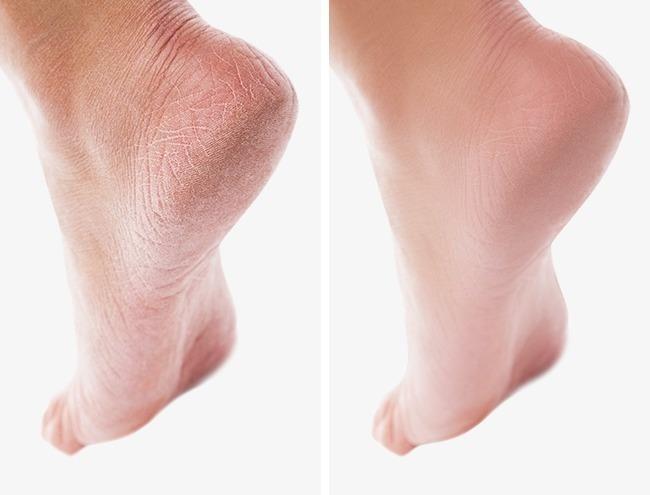 Yumuşak Topuklar İçin:   2 fincan ılık suya, yarım kap karbonat ve 1 fincan sirke ekledikten sonra ayaklarınızı bu suyun içinde 15-20 dakika bekletin. Daha sonra kurulayın ve nemlendirici krem sürün. Topuklarınız daha yumuşak ve beyaz değil mi?