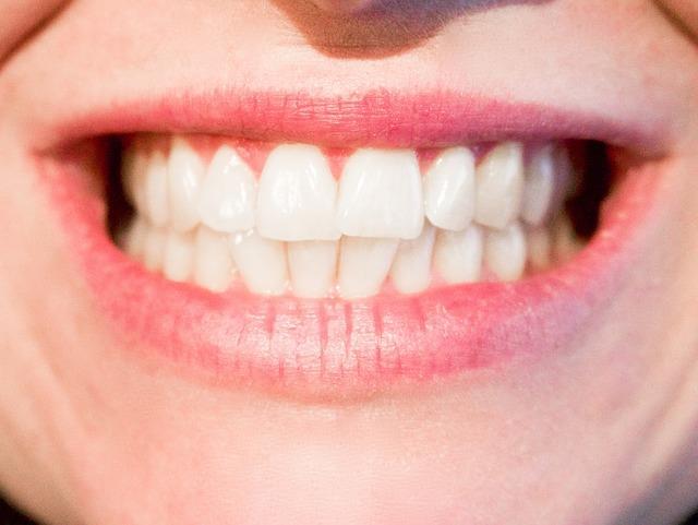 """Diş problemleriniz artar  Çocukluğumuzdan beri şeker tüketimiyle ilgili bize ilk öğretilen kuşkusuz şekerin dişler için ne kadar zarar verici olduğudur. Diş hekimini sık sık ziyaret ediyor, dolgular, kanal tedavilerine sık sık maruz kalıyorsanız şeker suçlu olabilir. Dişlerin arasında kalan yiyecek partikülleri diş çürümesine neden olan asit üretir. Tükürük, sağlıklı bir bakteri dengesinin kendiliğinden korunmasına yardımcı olurken, aşırı miktarda şeker yemenin pH düzeylerini etkileyebileceğini ve ağzınızda bakteri üremesine ve çoğalmasına imkân tanıyan doğal ekosistemin bozulmasına sebep olabileceğini unutmamalısınız.  <a href=  http://mahmure.hurriyet.com.tr/foto/saglik/7-maddede-saglik-efsaneleri_42614/  style=""""color:red; font:bold 11pt arial; text-decoration:none;""""  target=""""_blank"""">  7 Maddede Sağlık Efsaneleri"""