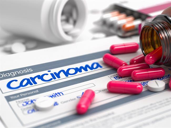 Modern çağın korkutucu hastalığı kanser günümüzde hızla yaygınlaşıyor. Ülkemizde yılda yaklaşık 200 bin kişiye kanser tanısı konulurken, önümüzdeki 20-30 yıl içerisinde her 2 kişiden birine kanser tanısı konulacağı tahmin ediliyor. Buna karşın teknoloji ve tıp alanında yaşanan hızlı gelişmelerle pek çoğunun gerek erken evrede yakalanabilmesi, gerekse de en yeni yöntemlerle tedavi edilebilmesi hayatta kalma oranını da yükseltiyor.  Tıbbi Onkoloji Uzmanı Prof. Dr. Aziz Yazar kanser hakkındaki düşüncelerini bizler paylaşıyor…  Kaynak Fotoğraflar: Pixabay