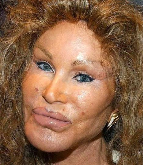 Jocelyn Wildenstein'ın takma ismi Catwoman yani kedi kadın, çünkü yüzünü bir kediye benzetmeye çalıştığını söylüyor...