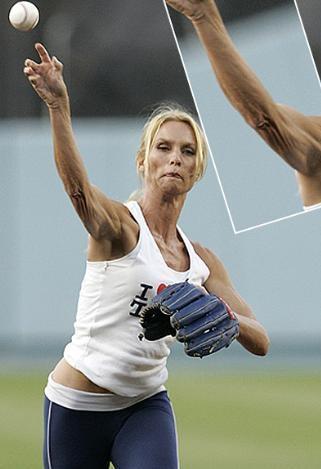 44 yaşındaki Nicolette Sheridan'ın fiziği herkesi kıskandırdıyor. Ama kollarındaki bu selülitlere ne demeli.