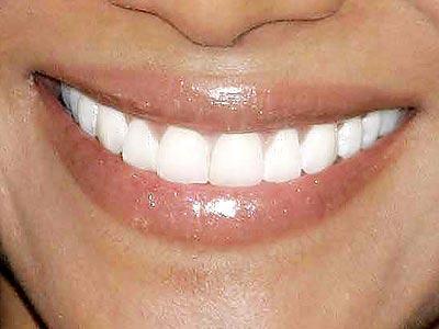 TEST: Bu gülümseme kimin? - 1