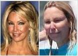 Gösteri dünyasının ünlülerinin sürekli kozmetik ürünlerden ve estetik cerrahideki gelişmelerden yararlandığı bir gerçek. Ama bazen öyle şaşırtıcı görüntüler ortaya çıkıyor ki. Bunlardan biri de Heather Locklear. 46 yaşındaki yıldız Hawai tatili sırasında objektiflere makyajsız ve üstelik fazla botokstan şişmiş yüzüyle görüntülendi. İşte ünlülerin makyajlı ve makyajsız yüzleri.